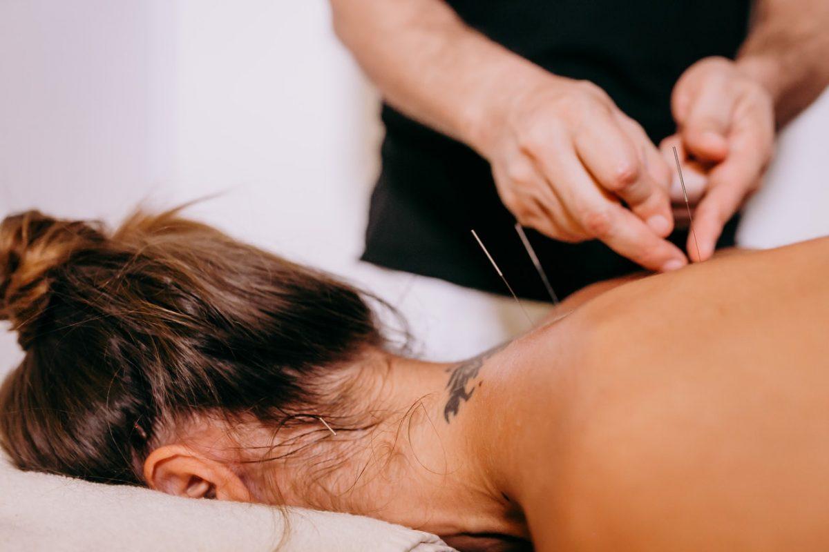 Na czym polega akupunktura?